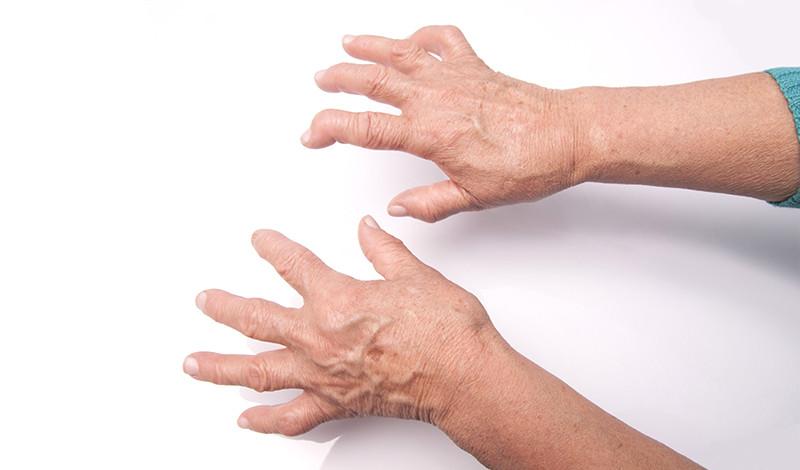 ízületi gyulladás enyhíti a lábak ízületeit