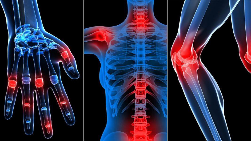 Top 4 gyógynövény ízületi fájdalmakra - NaturComfort