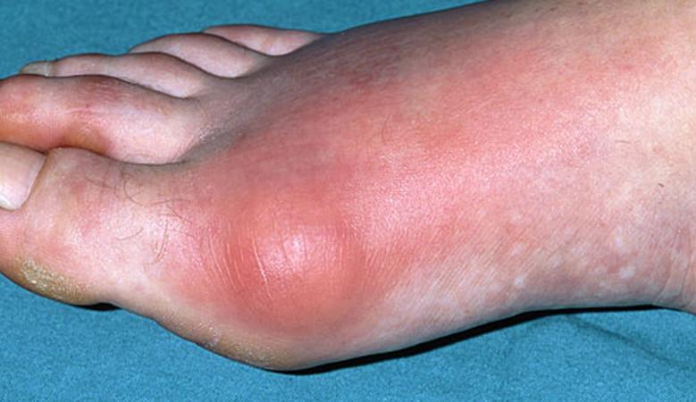 ízületi fertőző betegségek tünetei