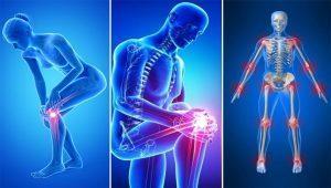 miért fáj az ízületek felváltva vállfájdalom okozza az orvos