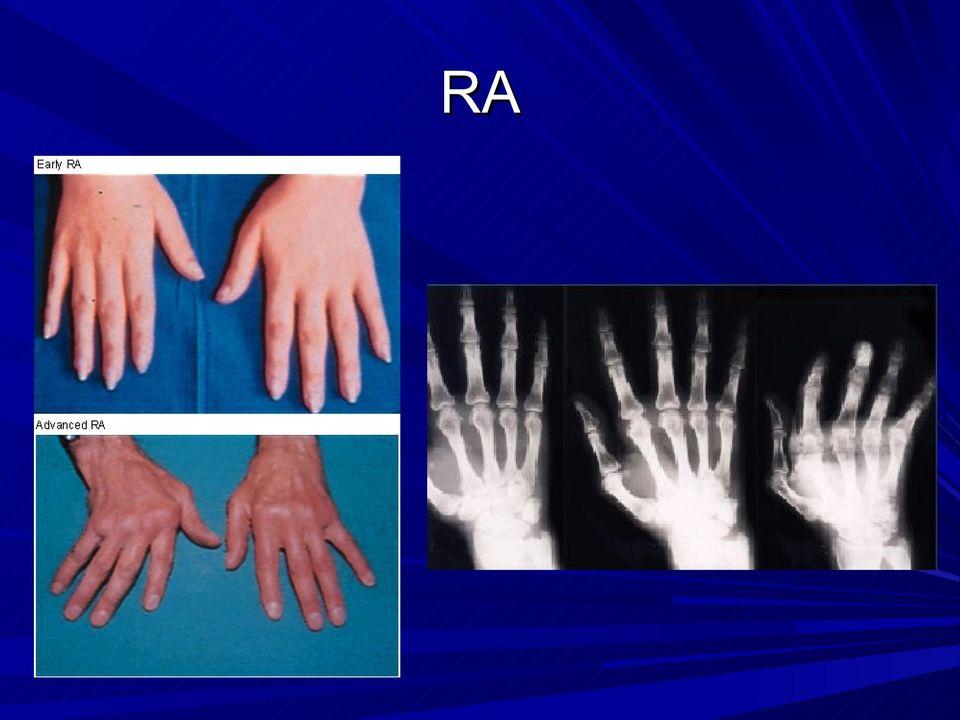 ízületi javítás polyarthritis esetén a kezek ízületei nagyon fájdalmasak