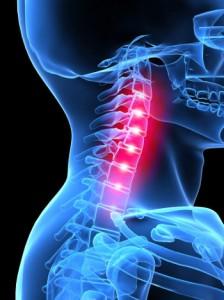 Mi a legjobb kenőcs a nyaki osteochondrosis számára? - Homorú-domború lencse July