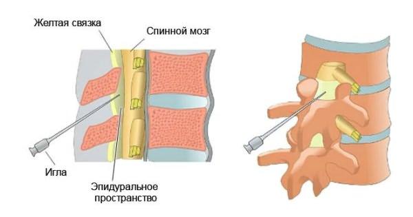 érzéstelenítő kenőcs az ágyéki csontritkulás kezelésére