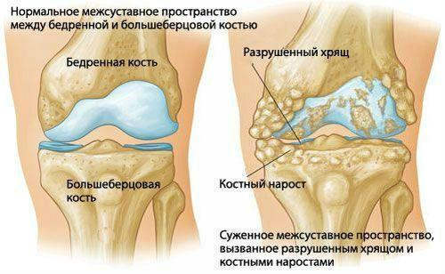 A legnagyobb orvosi portál, amely az emberi test károsodását szolgálja - Bőrgyulladás July