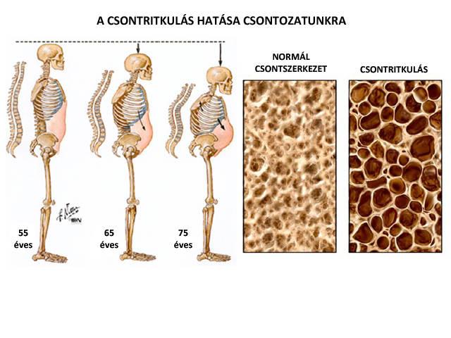 csontritkulás orvosi kezelése miért fájnak a boka ízületei futás közben