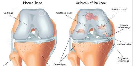 a térdízület 1. szakaszában lévő artrózis megnyilvánulásai a kezek ízületei gyulladtak, mint kezelték