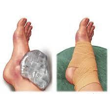 Meddig gyógyul a bokatörés?