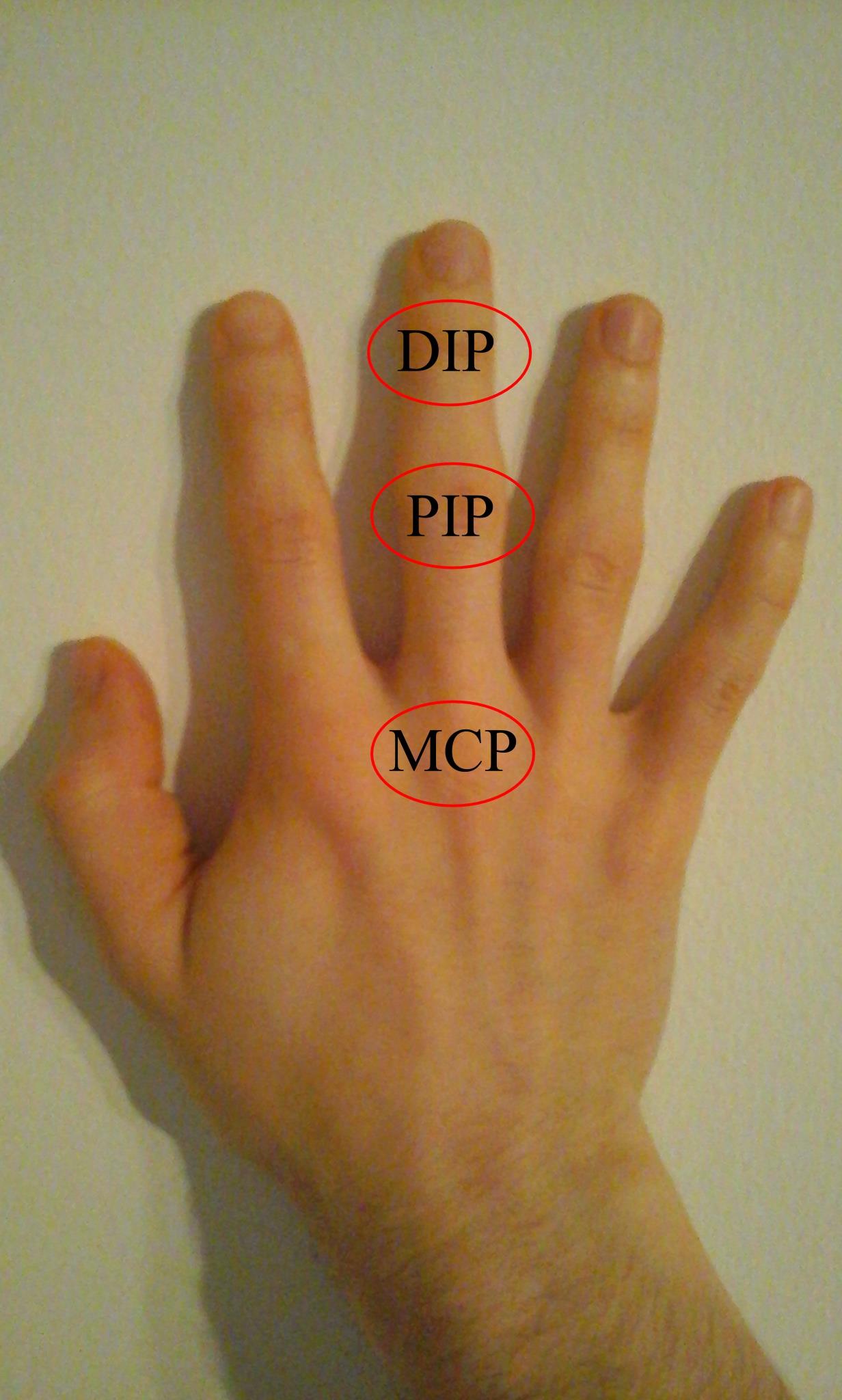 ízületi gyulladás a középső ujján