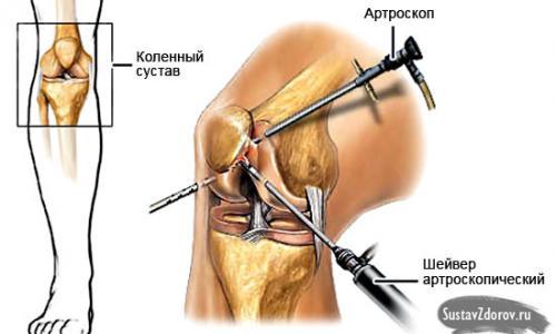 ízületi deformáló ízületi kezelési módszerek a térd artrózisával felszaporodhat