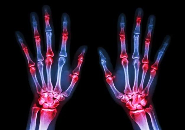 az akut rheumatoid arthritis kezelése