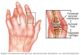 a lábak és a karok ízületei fájnak, mit kell tenni