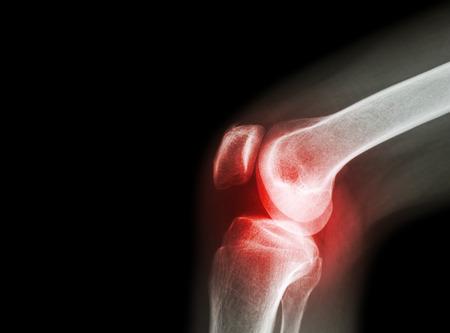 artrózis ortopédiai kezelése