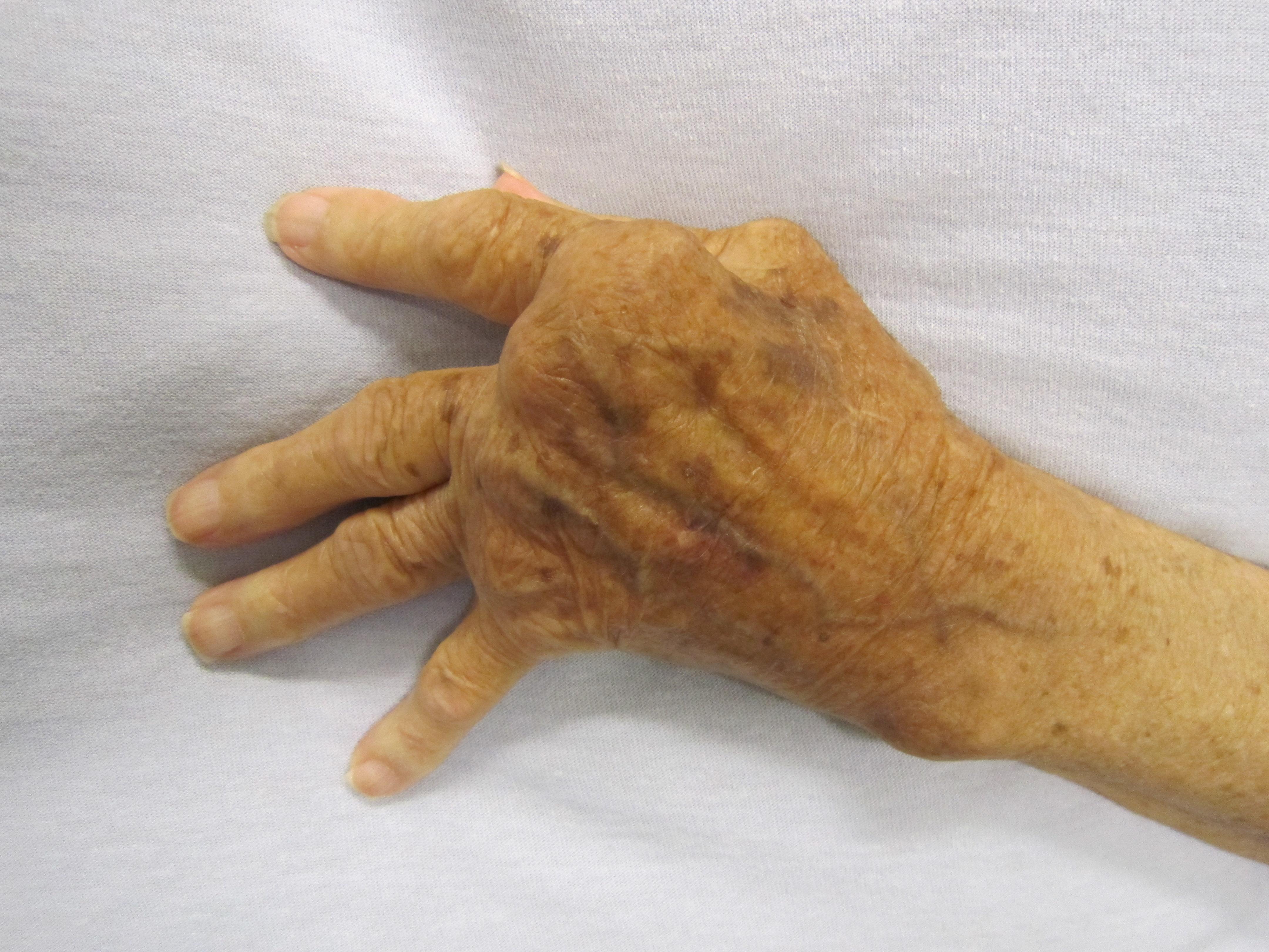 ízületi granuloma kezelés