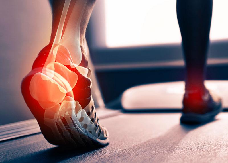 a térdízület második fokú artrózisa