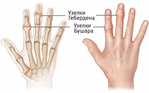a kéz ízületeinek deformáló artrózisa fájó térdízület kenőcs kenet