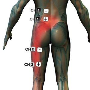 fájdalom a csípőben és az ágyékban fáj a jobb láb ízületei