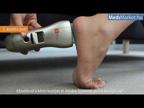 eszköz artrózis-orion kezelésére medencei ízületi rendellenességek kezelése