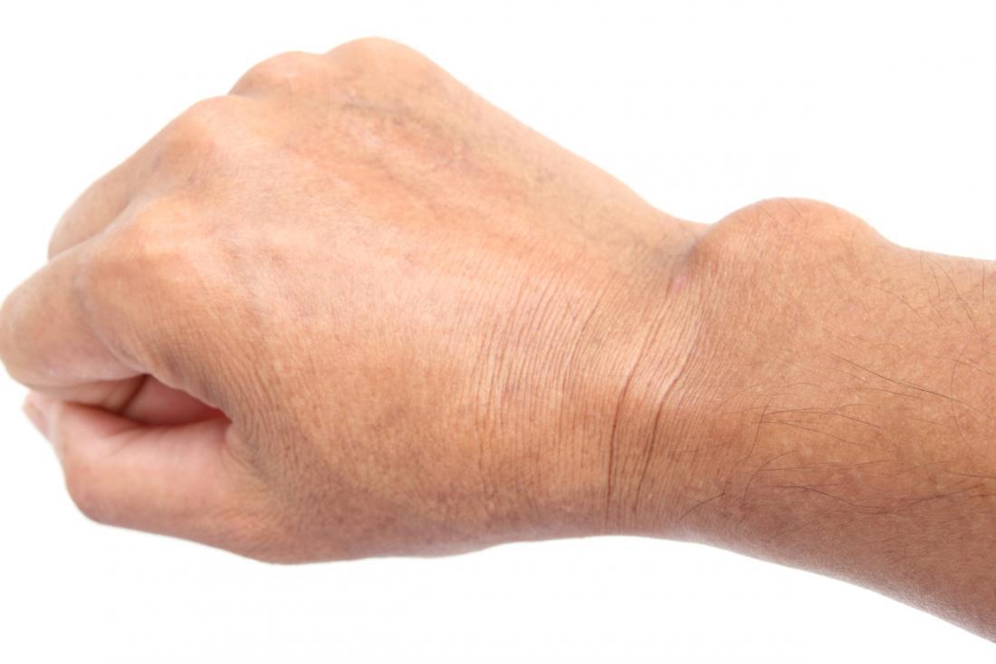 kéz csukló fájdalmak