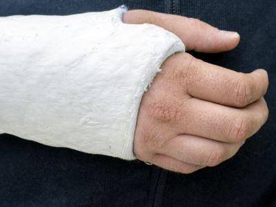 ízületi hialuronikus kenőcs ha a kar ízülete gyulladt, kezelje