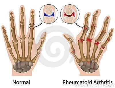 a kéz és a láb ízületeinek osteoarthritisének kezelése