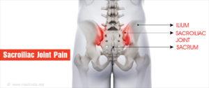 Kisízületi fájdalom és kezelése - Fájdalomközpont