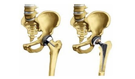lábízületi 1-es és 2-fokos kezelés cseh kenőcs az arthrostop ízületekre