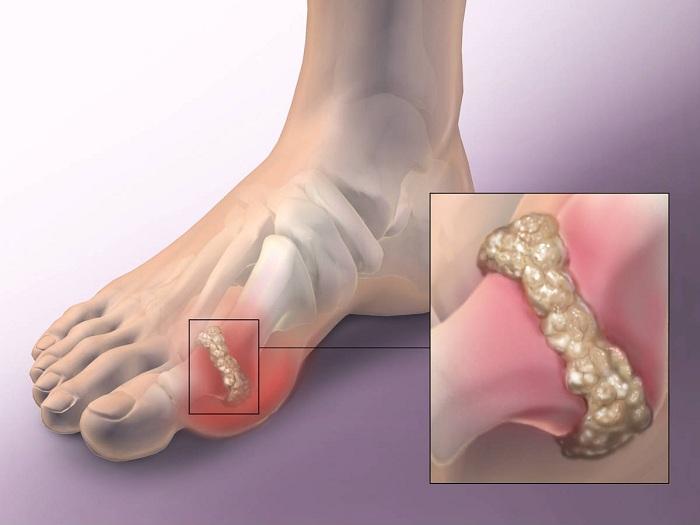 a bal vállízület fájdalma az ujjakat érinti nem kapott aludni fájdalmas ízületeket