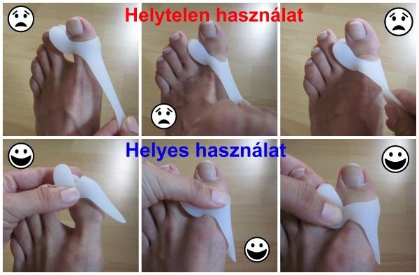 ha a kis lábujj fáj