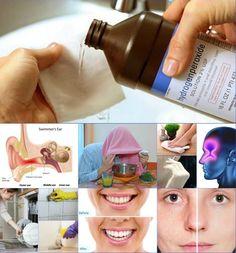 hidrogén-peroxid ízületi fájdalmak kezelésére