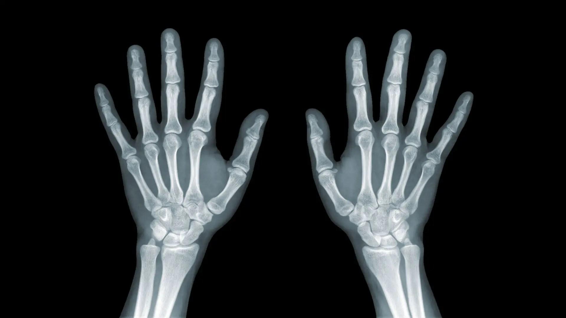 a láb ízületeinek szinovitisz kezelése milyen orvos a térdízületek fájdalmairól