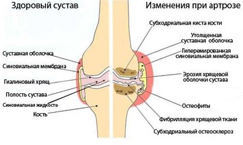 levegő az ízületben artrózissal ízületi ízületi deformáció ízületi gyulladás