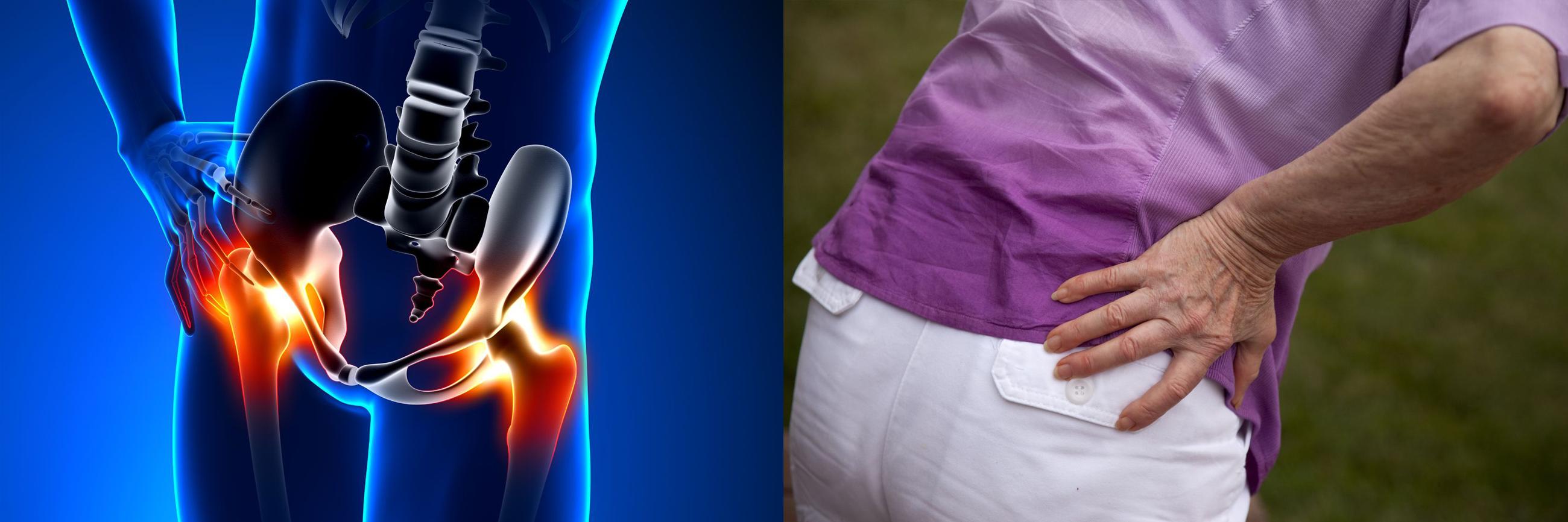 hogyan kell kezelni a csípőreflexeket futás- és térdfájdalom