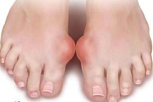 mit kell venni a lábízületek fájdalmától
