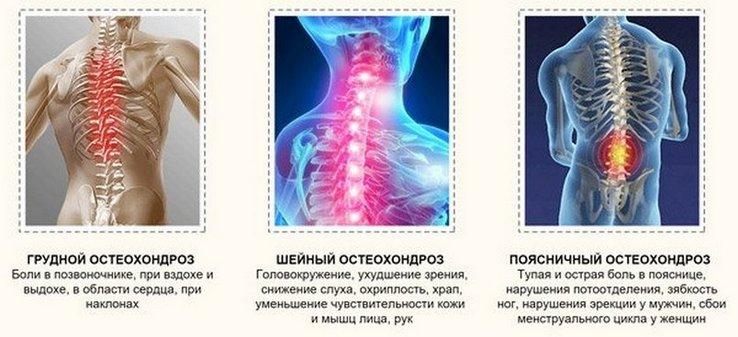 Cervicalis osteochondrosis fejfájás