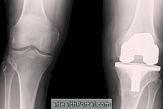 hosszú térd artrózissal ízületi gyulladás és ízületi gyulladás ahol kezelni