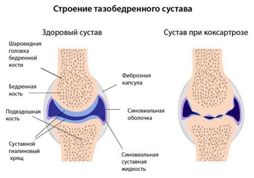 fejfájás nyaki osteochondrozis kenőcsrel