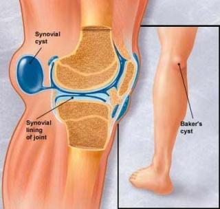 fájdalom a csípőízületben járás közben