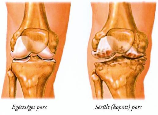 térd kondroprotektív artrózisa végső szakasz a térdfájdalom miatt
