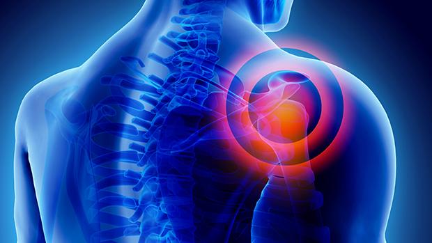 térd és a vállízület fáj hogyan lehet legyőzni a könyökízület osteoarthritisét