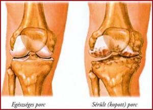 A térdízület 2 fokos arthrosisának kezelése