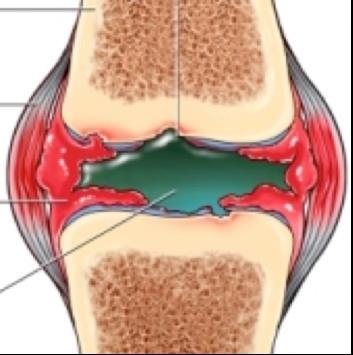 térdízület gonartrosis gyógyszerei a metatarsus ízületi fájdalmai