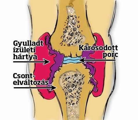 térdízület ízületi ízületi gyulladása térd ízületi sérülés
