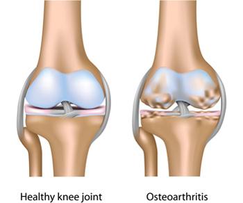 térdízületi készítmények almak eszköz artrózis kezelésére