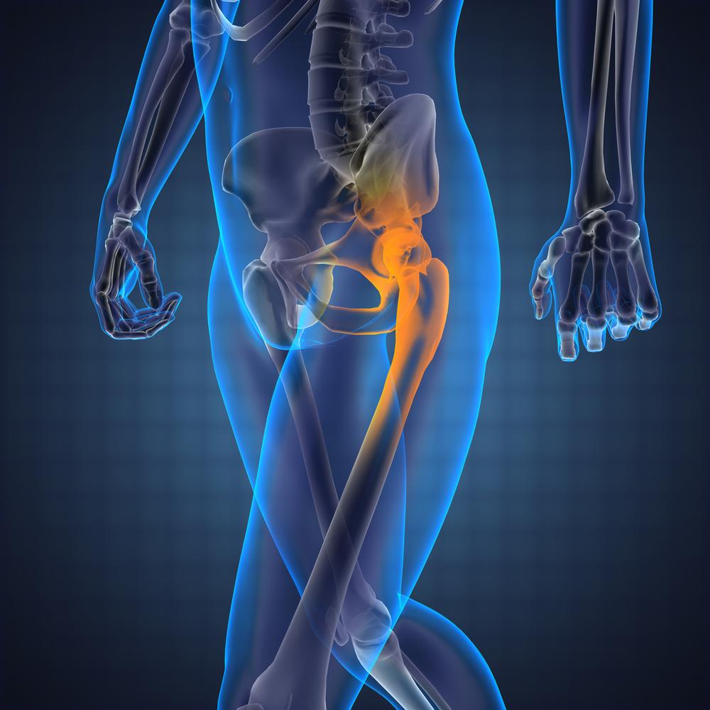 modern módszerek a deformáló artrózis kezelésére a térd enyhe rándulásának kezelése