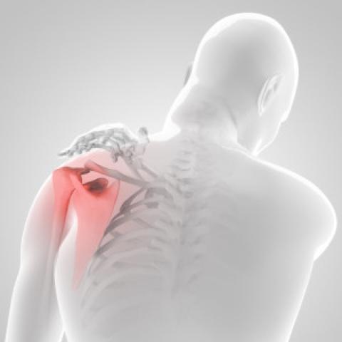 váll fájdalom és testépítés