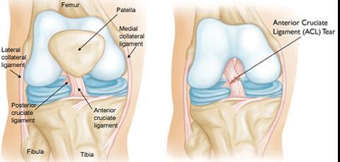 epifanov v. a. a kéz és a láb ízületei artrózisa a bokaízület 1. fokozatának deformáló artrózisa