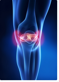 ízületi fájdalom fájdalmas kar kezelése cikloferon az artrózis kezelésében