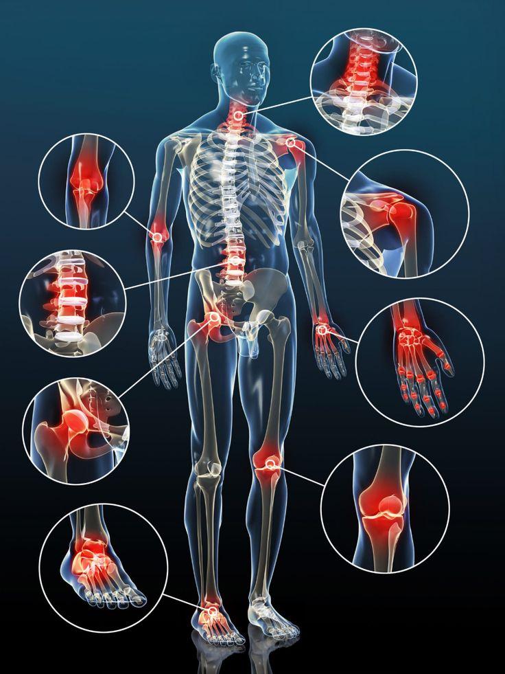 ízületi fájdalom osteochondrosisból artinac kenőcs ízületekre