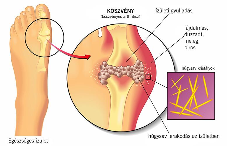 ízületi gyulladás a láb ujján hogyan kell kezelni