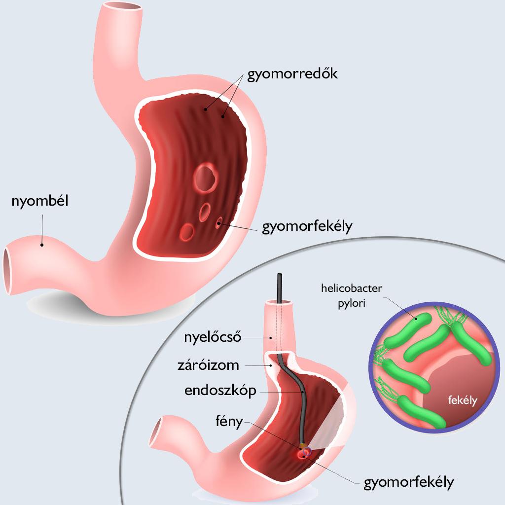 ízületi gyulladások kezelése gyomorfekély esetén